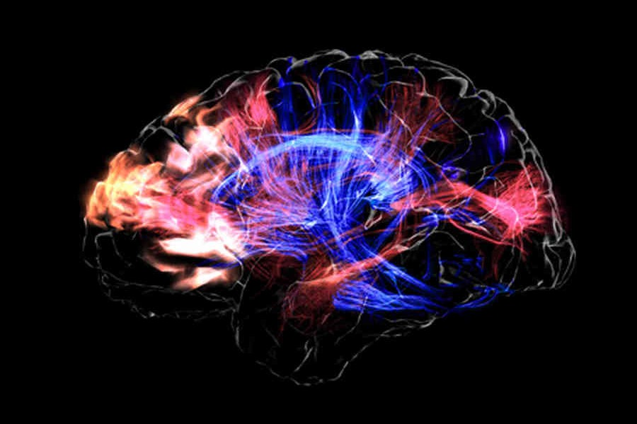 brain_visualization-0b59ff84ad83e6cb2ee0f2fdacd1313022fe69dd-s6-c30